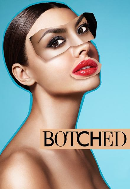 Botched: Season 4